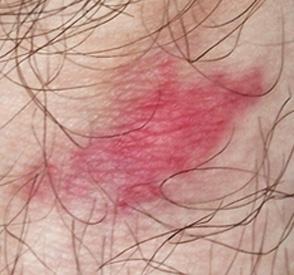 Identify Bug Bites - Common Bug Bites | Orkin